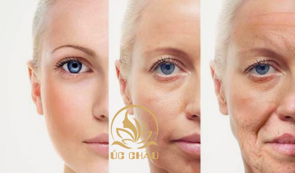 Căng da mặt ít xâm lấn ( Facial Threads Lift)
