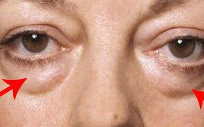 Khắc phục mọi khuyết điểm về mắt