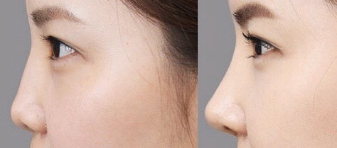 Thẩm mỹ mũi